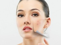 Acne: Don't Let It Ruin Your Summer
