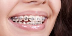 Girl teeth in braces